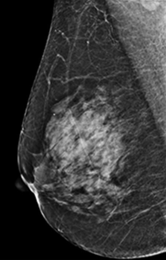Content Guide – The American Board of Radiology